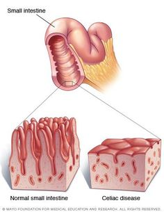 Image by the Mayo Clinic illustrating Celiac Disease -Your small intestine is lined with tiny hair-like projections called villi, which work to absorb vitamins, minerals and other nutrients from the food you eat. Celiac disease damages the villi, leaving your body unable to absorb nutrients necessary for health and growth.