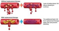 Type of hemophilia: hemophilia are classified into three categories depending on the missing clotting factor in each case: Hemophilia (a): arising from a lack of clotting factor No. 8, which is the most common, and therefore called (classical hemophilia). Hemophilia (b): arising from a lack of clotting factor No. 9, and is most prevalent in the Arab world. Hemophilia (c): arising from a lack of clotting factor No. 11, which is less common types of hemophilia.