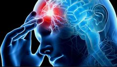 Neurology is the branch of medical science that is concerned about the nervous system of the body and its proper Cerebral Circulation, Angina, Transient Ischemic Attack, Types Of Strokes, Cluster Headaches, Traumatic Brain Injury, Medical Science, Cardiovascular Disease, Zika Virus