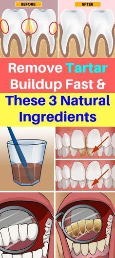 gum removal Remove Tartar Buildup Fast & These 3 Natural Ingredients! - Healthy Beauty Ways Teeth Health, Oral Health, Dental Health, Dental Care, Gum Health, Causes Of Tooth Decay, Oral Surgery, Best Oral, Teeth Care