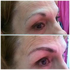 Microblading (eyebrows embroidery) what once was not a good shape there is now beautifully designed eyebrows