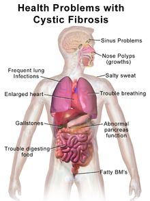 Cystic fibrosis (CF), also known as mucoviscidosis, is a genetic disorder that affects mostly the lungs but also the pancreas, liver, kidneys and intestine.Long-term issues include difficulty breathing and coughing up sputum as a result of frequent lung infections. Other symptoms include salty sweat,sinus infections, poor growth, fatty stool, clubbing of the finger and toes, and infertility in males among others. There is no cure for cystic fibrosis. Lung infections are treated with…