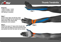 Kinesiology tape can help to prevent common condition that affects the tendons that are used to straighten your thumb #thumb #tendonitis #physiotherapy