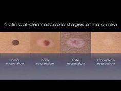 Halo Nevus - White Circles On Skin TREATMENT http://www.youtube.com/watch?v=L4QRpvHKyVI