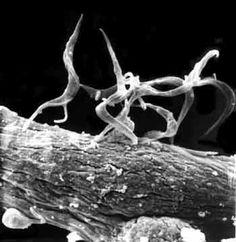 Os pesquisadores dos Estados Unidos, em Atlanta, estão começando uma série de testes novos oficiais,com células-tronco embrionárias em seres humanos,com o consentimento das Instituições Estatais reguladoras.