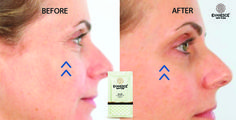 Eyebags and Fine Lines Gone in 2 minutes! www.evanescenewyork.com