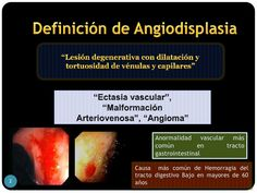 Resultado de imagen de angiodisplasia