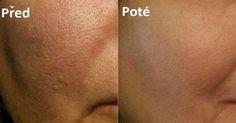 Zbavte se velkých pórů: Nejlepší recepty pro vyhlazení pokožky