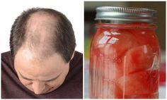 La alopecia es un problema que aqueja principalmente a los hombres en su edad adulta o madura. Puede presentarse de manera parcial o total dando lugar a la calvicie. Entérate acerca de un poderoso remedio natural para contrarrestar la caída del cabello y estimular su crecimiento.