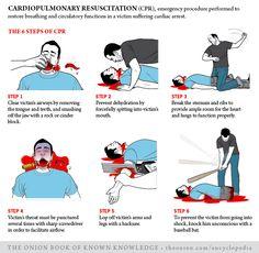 Cardiopulmonary Resuscitation | The Onion - America's Finest News Source
