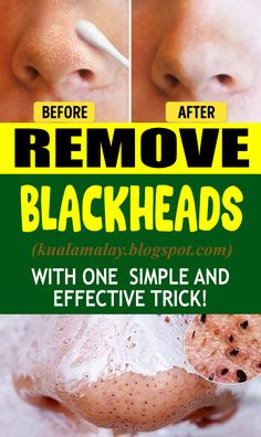 Expel Blackheads With One Simple And Effective Trick Zits resemble minor parasites that quite often mess up with your desire of ha. Natural Health Tips, Natural Health Remedies, Health And Beauty Tips, Health And Wellness, Health Diet, Herbal Remedies, Health Exercise, Health Fitness, Health Care