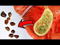 Get Rid Of Gallstones Naturally!!! - YouTube