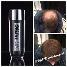 Hair Illusion 38g Not Toppik Caboki Xfusion Hair Concealer Hair Fibers Brown #HairIllusion