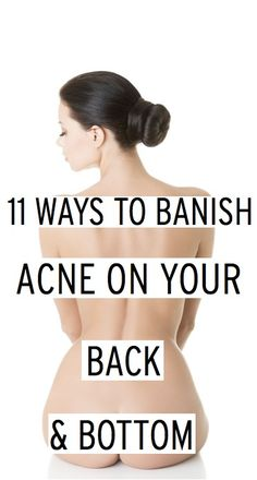 11 tips to get rid of back and bottom acne taken from expert tips by Daniela, The AcneWhisperer !  www.acnewhisperer.com and www.daniela.com