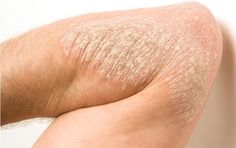 Natural Remedies for Psoriasis.What is Psoriasis? Causes and Some Natural Remedies For Psoriasis.Natural Remedies for Psoriasis - All You Need to Know Home Remedies For Psoriasis, Types Of Psoriasis, What Is Psoriasis, Psoriasis Remedies, Natural Remedies