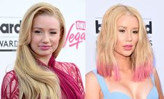 What had remained a topic of mere speculation was over the weekend laid to rest with #Iggy #Azalea clearly #stating that indeed, her #breast and #nose are intact thanks to this man who conducted a #plastic #surgery on her.