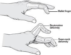 Boutonniere Deformity - Kleiser Therapy