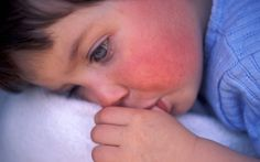 Scarlet fever symptoms warning as cases hit almost 50-year high - Telegraph