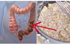 Non sei grassa, forse hai bisogno solo di pulire accuratamente il colon (leggi come) - Corriere Serale
