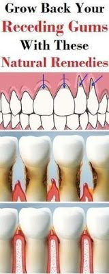 Grow Back Your Receding Gums With These Natural Remedies