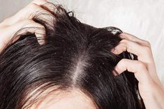 Even though dandruff is not contagious and actually caused due to scalp dryness, no one really wants to get close with someone who always has one hand in their hair. Let us help you get rid of it with home remedies to help you get rid of dandruff easily. Home Remedies For Dandruff, Hair Dandruff, Anti Dandruff Shampoo, Natural Remedies, Dry Shampoo, Treating Dandruff, Natural Treatments, Oily Scalp, Hair Masks
