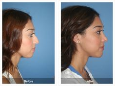 Before & After Nose Job 45
