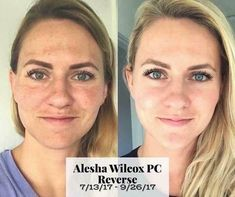 Got an uneven skin tone? Dark spots or patches? What about sun damage? Check out these Rodan and Fields before and after with the Reverse regimen. Rodan And Fields Reverse, My Rodan And Fields, Dark Spots On Face, Uneven Skin Tone, Skin Brightening, Skin Care Regimen, Anti Aging Skin Care, Good Skin, Along The Way