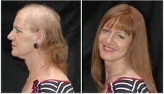 Αποτέλεσμα εικόνας για hairstyles for hair loss women