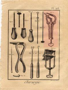 Stampa originale tratta dall'Enciclopedia di Diderot D'Alembert - è stato evidenziato lo speculum vaginale
