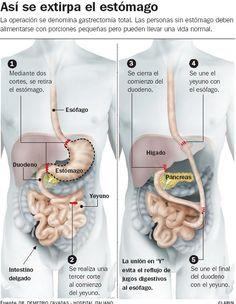Nuevas estrategias para prevenir cáncer hereditario88