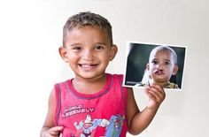 Rodrigo is excited to share his new smile. :)   http://www.operationsmile.org