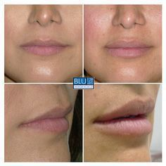This client wanted full, but natural looking lips and she's happy with what 1 syringe of Juvederm Ultra did for her. Here she is before, and 2 weeks after her first injection. filler before and after Dermal Fillers Lips, Botox Fillers, Lip Fillers, Juviderm Lips, Botox Before And After, Permanent Lipstick, Lip Augmentation, Best Lip Gloss, Homemade Lip Balm