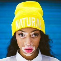 Naturally Beautiful #model #vitiligo #natural