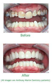 Dental Crowns in Norfolk & Yorktown cosmetic dentistry