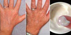 60 Yaşındayım Ancak Ellerim 30 Gibi Görünüyor, Sırrı Her Gün Bu Kremi Uygulamak