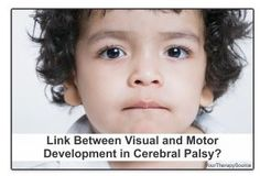 Link Between Visual and Motor Development in Cerebral Palsy?  - pinned by @PediaStaff – Please Visit ht.ly/63sNtfor all our pediatric therapy pins