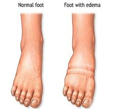 Fluid Retention Before After