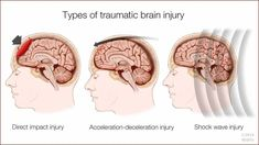 DEAR MAYO CLINIC: Is there a link between traumatic brain injury, or TBI, and depression? Would the treatment for depression in someone with a TBI be different than treatment for depression without this sort of injury?