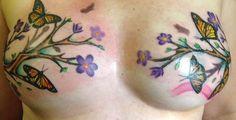 Tatuagens cobrindo marcas de mastectomia