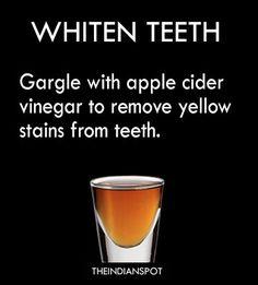 10 amazing Health benefits of Apple cider vinegar