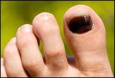 Grab detailed information about black toenail fungus. Use prescription-strength home remedies to get rid of black toenail fungus. Purple Toe Nails, Purple Toes, Purple Manicure, Toe Nail Color, Toenail Fungus Pictures, Black Toenail Fungus, Skin Tags Home Remedies