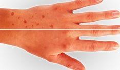 Dermatológ odhaľuje, ako odstrániť pigmentové škvrny. Stačí na to jednoduchý trik! | Božské nápady