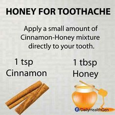 Honey for toothache - Tooth ache relief - Tooth Pain Relief, Remedies For Tooth Ache, Teeth Care, Skin Care, Honey And Cinnamon, Natural Health Remedies, Natural Cures, Cavities, Natural Healing