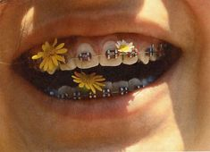 i've never seen something that makes braces look aesthetic Flower Yellow, Braces Colors, Brace Face, Good Vibe, Mabel Pines, Foto Pose, Mellow Yellow, Aesthetic Pictures, Artsy
