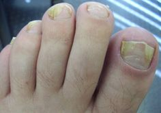 17 Home Remedies for Toenail Fungus | Home Remedies – Natural & Herbal Cures Made at Home