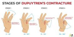 learn about the four stages of dupuytren's contracture Dupuytren's Contracture, Trigger Finger, Hand To Hand Combat, Hand Therapy, Bible Teachings, School Motivation, Neurology, Health And Wellbeing, Pain Relief