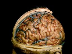 A dissection which has removed the scalp, skull and dura to show the cerebral veins and cortical arteries of the left cerebral hemisphere. (Copyright: Stanford School of Medicine Lane Medical Library) ~~ www.facebook.com/TheIrregularAnatomist ~~ www.twitter.com/Irr_Anatomist