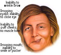 Bell's palsy is a form of facial paralysis resulting from a dysfunction of the cranial nerve VII (the facial nerve) that results in the inability to control facial muscles on the affected side