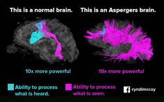 "the Asperger brain is one that is simply wired differently, not ""defective"""