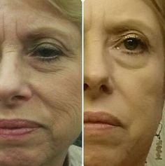 Working The Face Via Fingertip Reflexology Therapy: How Does Face Toning Truly Work?